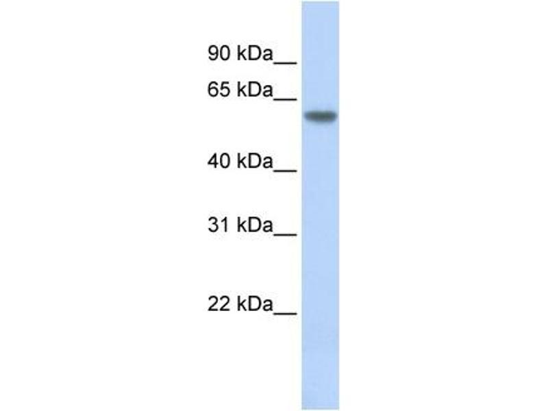 Western Blotting (WB) image for anti-Thyroid Hormone Receptor, beta (THRB) (N-Term) antibody (ABIN2780344)