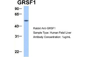 Image no. 3 for anti-G-Rich RNA Sequence Binding Factor 1 (GRSF1) (Middle Region) antibody (ABIN2778788)