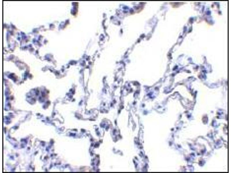 Immunohistochemistry (Paraffin-embedded Sections) (IHC (p)) image for anti-RRM2B antibody (Ribonucleotide Reductase M2 B (TP53 Inducible)) (AA 2-17) (ABIN500437)