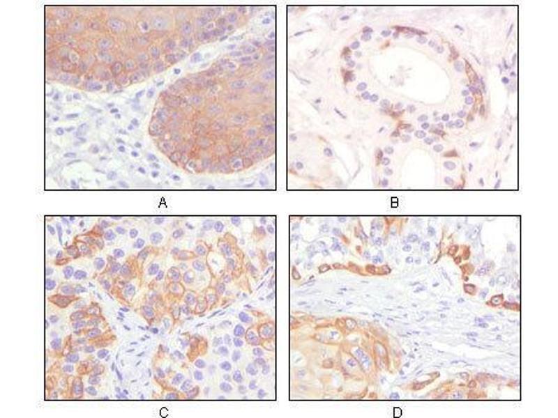 Immunohistochemistry (IHC) image for anti-Keratin 5 (KRT5) antibody (ABIN969078)