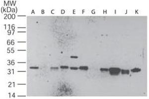 Western Blotting (WB) image for anti-Caspase 3 Antikörper (Caspase 3, Apoptosis-Related Cysteine Peptidase) (ABIN252651)