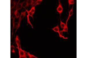 Image no. 3 for anti-Islet Amyloid Polypeptide (IAPP) antibody (ABIN6259921)