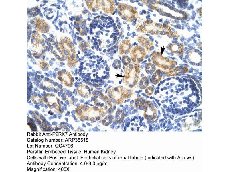 Immunohistochemistry (IHC) image for anti-Purinergic Receptor P2X, Ligand-Gated Ion Channel, 7 (P2RX7) (N-Term) antibody (ABIN2776335)