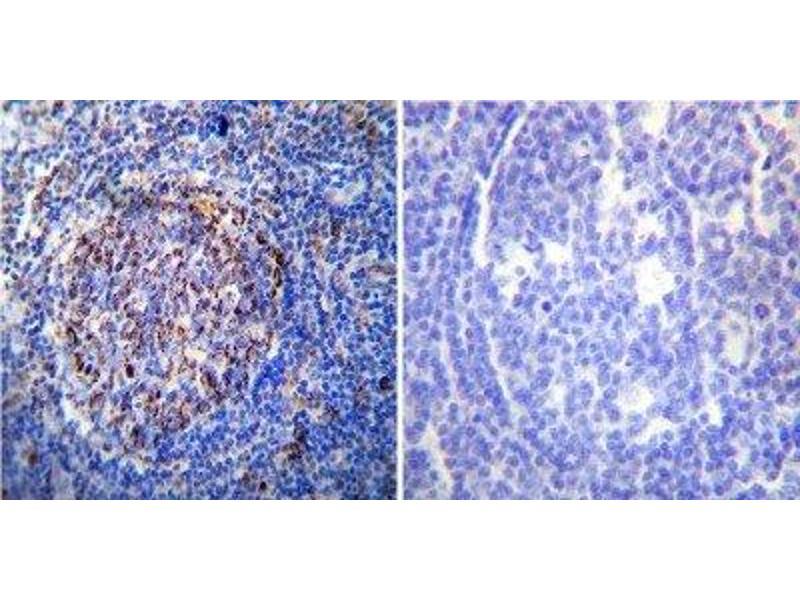 Immunohistochemistry (Paraffin-embedded Sections) (IHC (p)) image for anti-Heat Shock 60kDa Protein 1 (Chaperonin) (HSPD1) antibody (ABIN4320164)