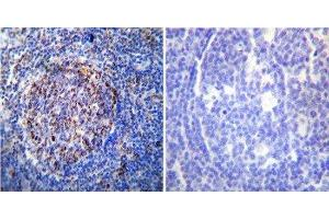 Immunohistochemistry (Paraffin-embedded Sections) (IHC (p)) image for anti-Heat Shock 60kDa Protein 1 (Chaperonin) (HSPD1) antibody (ABIN4320164)