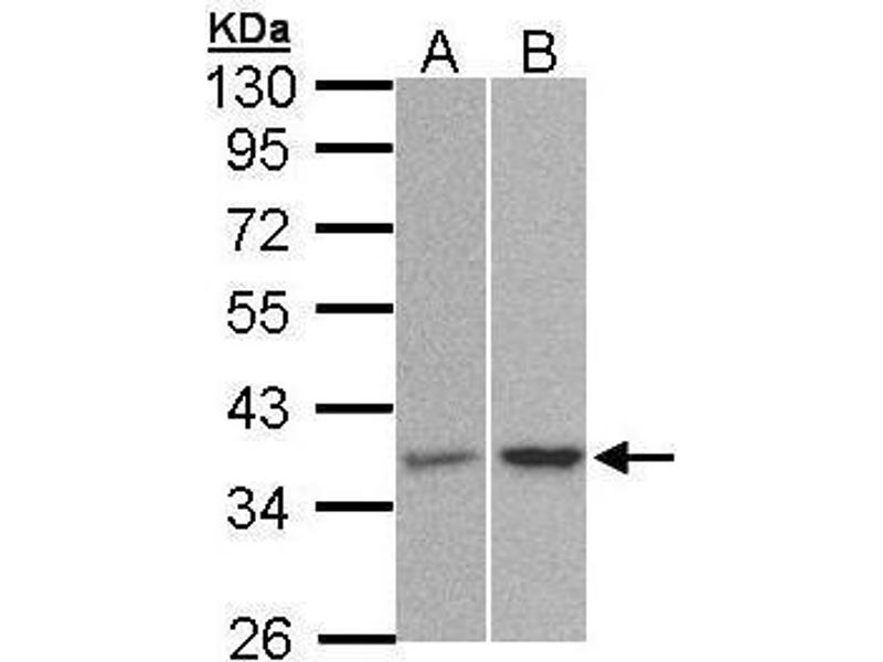 Western Blotting (WB) image for anti-Protein Phosphatase 2, Catalytic Subunit, alpha Isozyme (PPP2CA) (C-Term) antibody (ABIN2856333)
