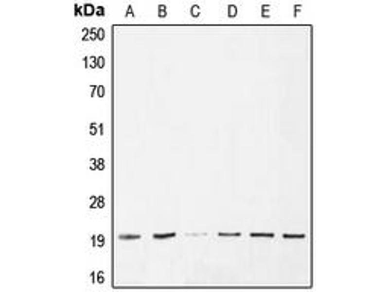 Western Blotting (WB) image for anti-BAX antibody (BCL2-Associated X Protein) (Center) (ABIN2705572)