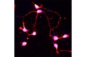 Immunofluorescence (IF) image for anti-BDNF antibody (Brain-Derived Neurotrophic Factor) (ABIN409162)