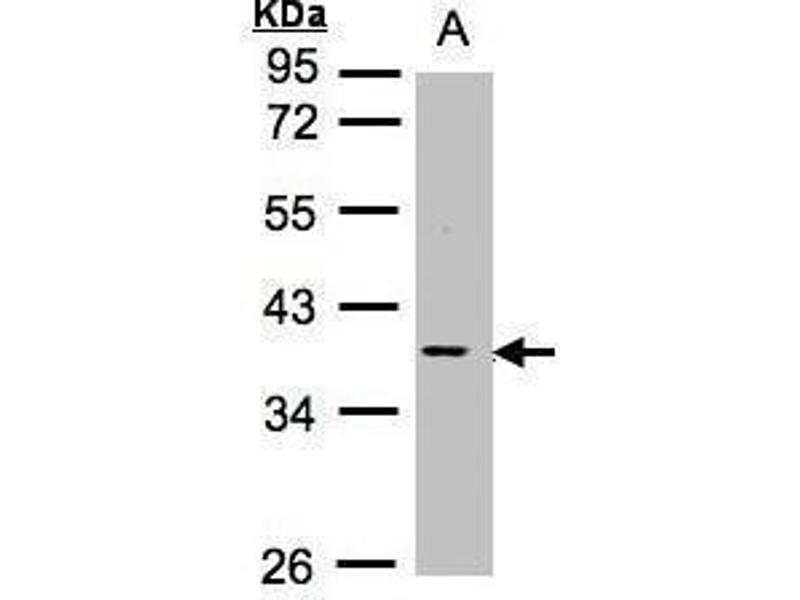 Western Blotting (WB) image for anti-Induced Myeloid Leukemia Cell Differentiation Protein Mcl-1 (MCL1) (Center) antibody (ABIN2855261)