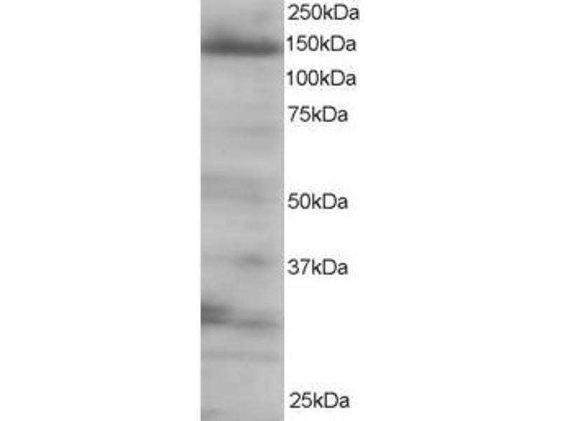 Western Blotting (WB) image for anti-EIF4ENIF1 antibody (Eukaryotic Translation Initiation Factor 4E Nuclear Import Factor 1) (C-Term) (ABIN185154)