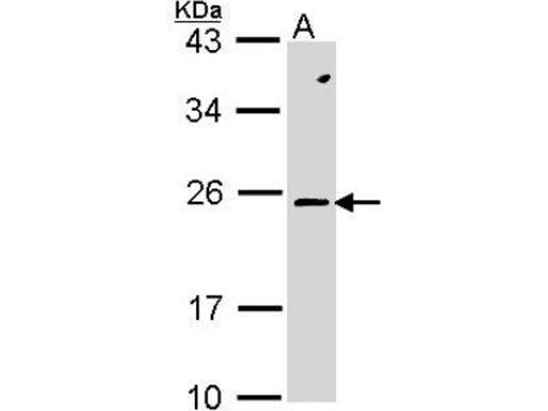 Western Blotting (WB) image for anti-Ras-Related C3 Botulinum Toxin Substrate 2 (Rho Family, Small GTP Binding Protein Rac2) (RAC2) (Center) antibody (ABIN443319)