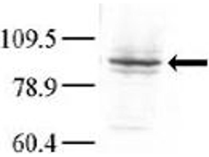 Western Blotting (WB) image for anti-Glucokinase antibody (GCK) (C-Term) (ABIN2437631)