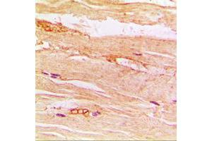 Immunohistochemistry (IHC) image for anti-Solute Carrier Family 2 (Facilitated Glucose Transporter), Member 4 (SLC2A4) (Center) antibody (ABIN2706241)