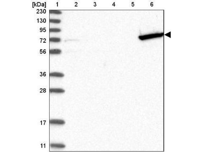 Western Blotting (WB) image for anti-Guanylate Binding Protein 6 (GBP6) antibody (ABIN4313708)