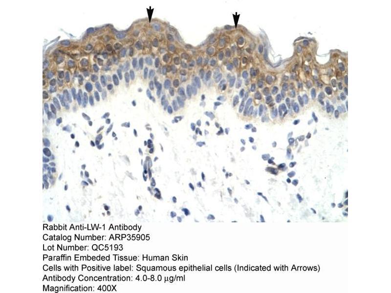 Immunohistochemistry (IHC) image for anti-LW-1 (HSFX1) (Middle Region) antibody (ABIN183244)