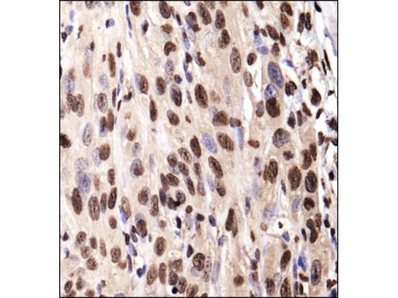 Immunohistochemistry (Paraffin-embedded Sections) (IHC (p)) image for anti-Insulin-Like Growth Factor 1 Receptor (IGF1R) (AA 700-800), (Internal Region) antibody (ABIN4321576)