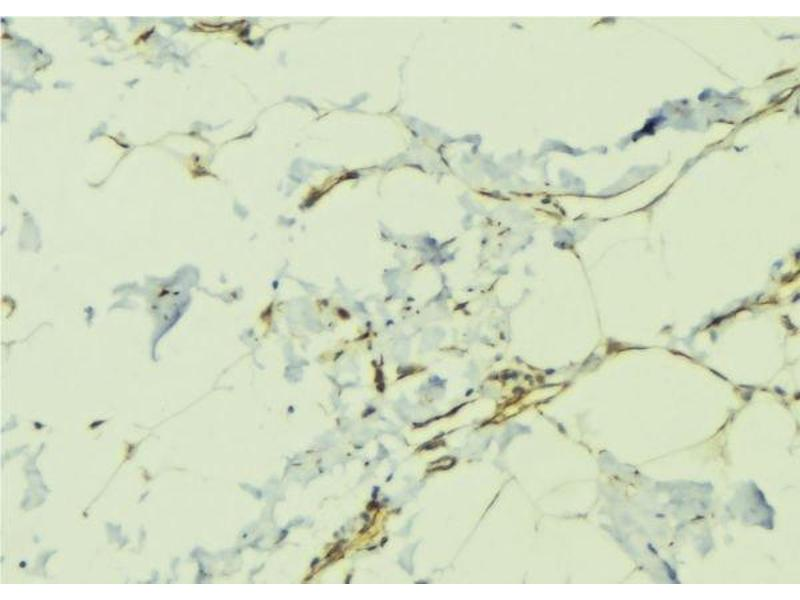Image no. 2 for anti-Teratocarcinoma-Derived Growth Factor 1 (TDGF1) antibody (ABIN6265513)