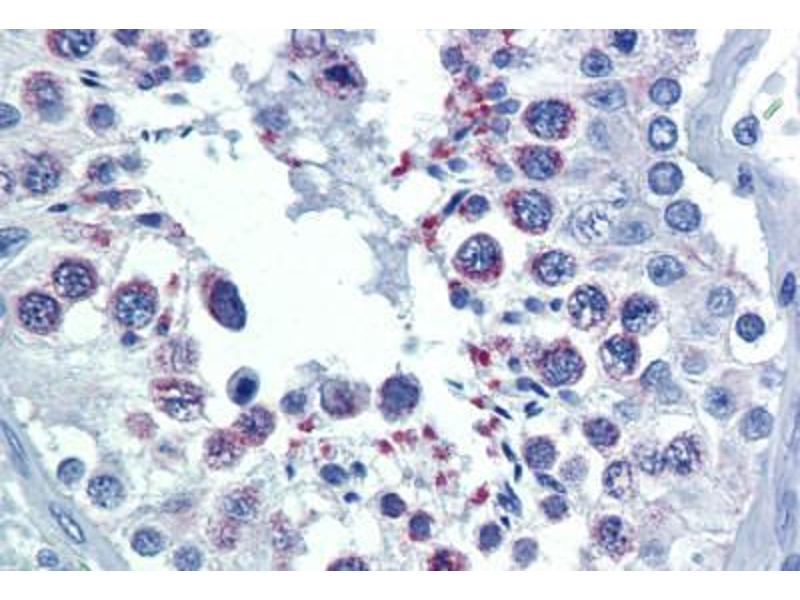 Immunohistochemistry (Paraffin-embedded Sections) (IHC (p)) image for anti-Second Mitochondria-Derived Activator of Caspase (DIABLO) antibody (ABIN462354)