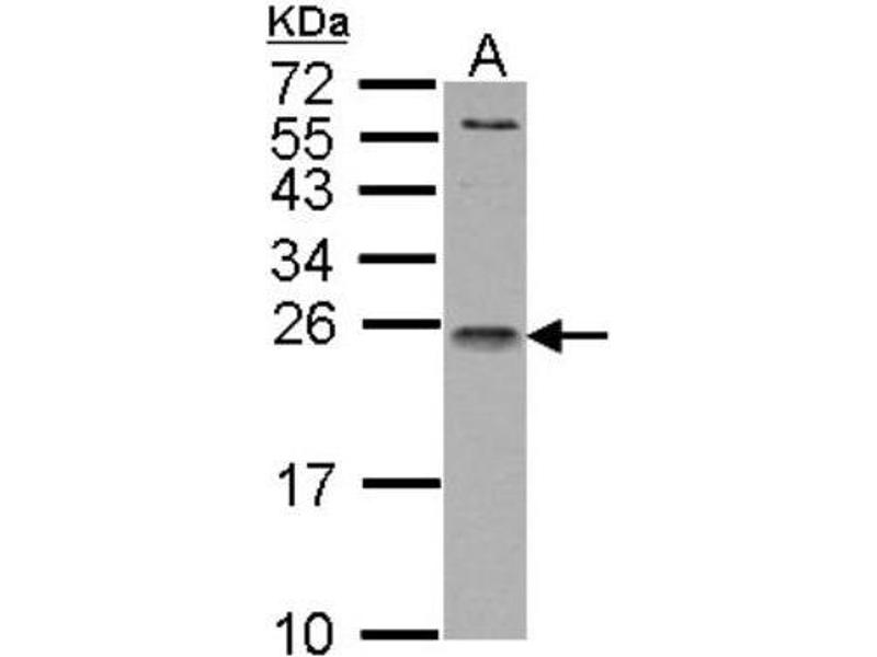 Western Blotting (WB) image for anti-Interleukin 1 Receptor Antagonist (IL1RN) (Center) antibody (ABIN442533)