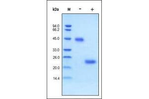 Image no. 1 for Vascular Endothelial Growth Factor (VEGF) (AA 27-191) (Active) protein (ABIN2181903)