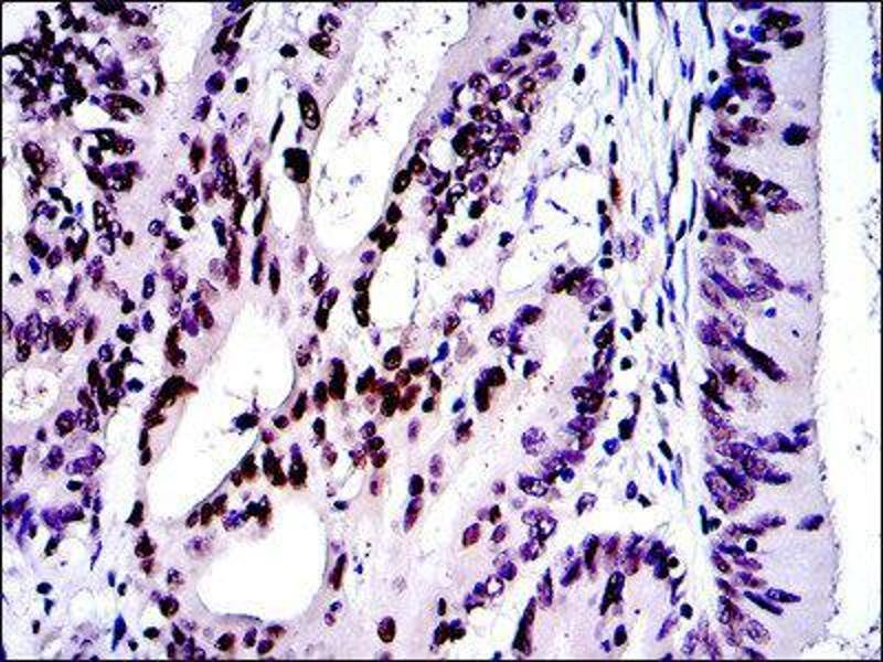 Immunohistochemistry (IHC) image for anti-C-JUN antibody (Jun Proto-Oncogene) (ABIN1846410)