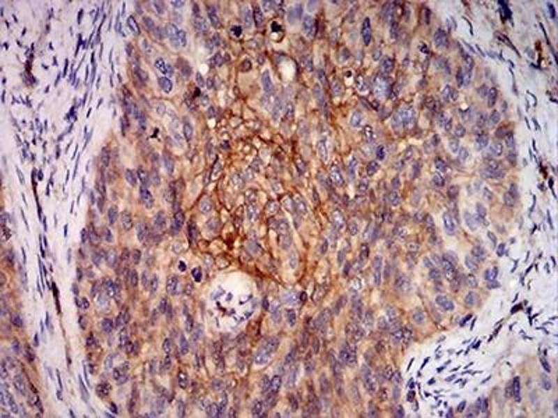 Immunohistochemistry (IHC) image for anti-V-Ral Simian Leukemia Viral Oncogene Homolog B (Ras Related, GTP Binding Protein) (Ralb) (AA 89-206) antibody (ABIN5683837)