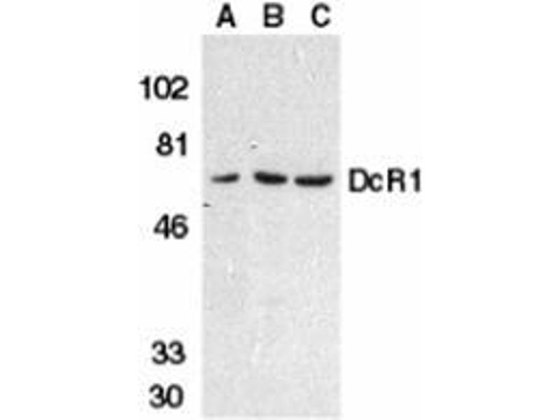 Western Blotting (WB) image for anti-TNFRSF10C antibody (Tumor Necrosis Factor Receptor Superfamily, Member 10c, Decoy Without An Intracellular Domain) (ABIN499722)