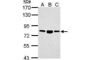 Image no. 3 for anti-Acyl-CoA Synthetase Long-Chain Family Member 4 (ACSL4) (C-Term) antibody (ABIN2854678)