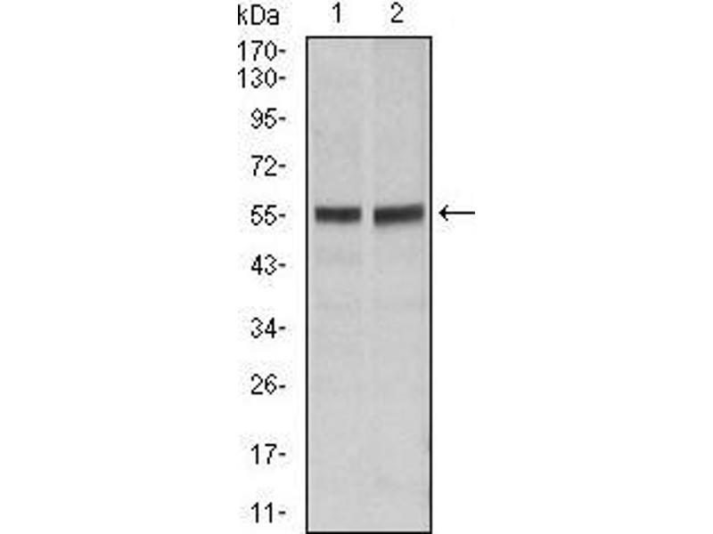 Western Blotting (WB) image for anti-Fas (TNF Receptor Superfamily, Member 6) (FAS) antibody (ABIN969518)