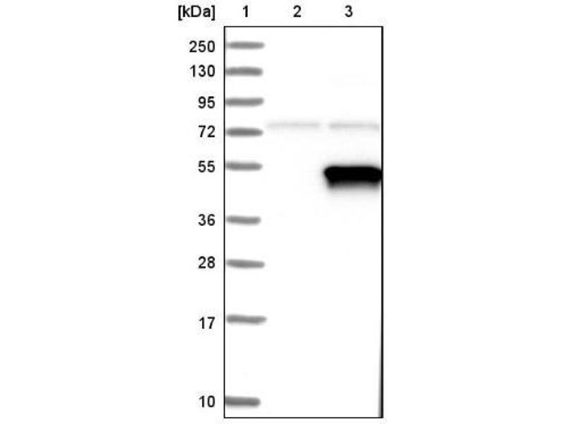 Western Blotting (WB) image for anti-Pyruvate Dehydrogenase Kinase, Isozyme 2 (PDK2) antibody (ABIN4344598)