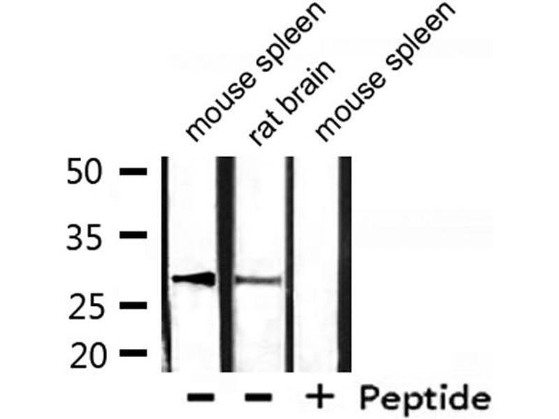 Image no. 2 for anti-Hydroxysteroid (17-Beta) Dehydrogenase 10 (HSD17B10) (AA 253-527) antibody (ABIN6267742)