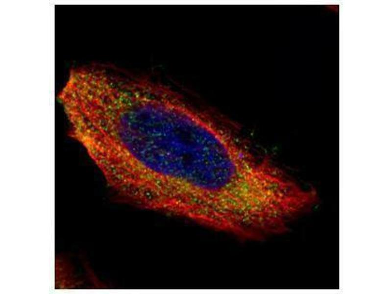 Immunofluorescence (IF) image for anti-MAP2K1 antibody (Mitogen-Activated Protein Kinase Kinase 1) (Center) (ABIN2855379)