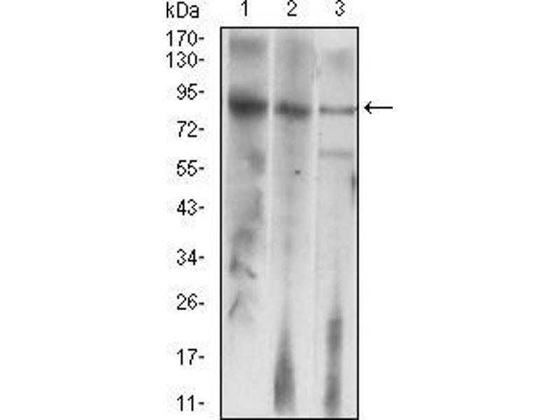 Western Blotting (WB) image for anti-Luteinizing Hormone/choriogonadotropin Receptor (LHCGR) antibody (ABIN5542336)
