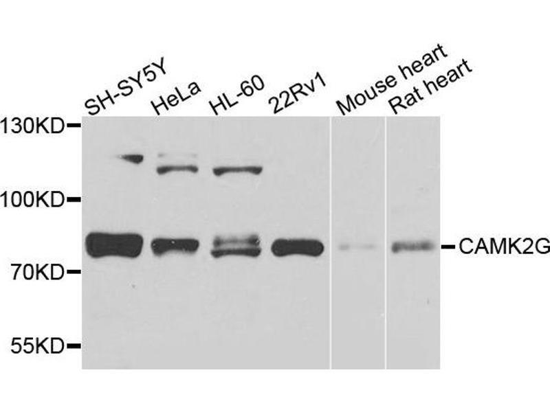Western Blotting (WB) image for anti-CAMK2G antibody (Calcium/calmodulin-Dependent Protein Kinase II gamma) (ABIN1871416)
