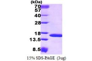 Image no. 1 for Tax1 (Human T-Cell Leukemia Virus Type I) Binding Protein 3 (TAX1BP3) (AA 1-124) protein (His tag) (ABIN667609)