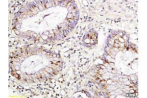 Immunohistochemistry (IHC) image for anti-IL15 antibody (Interleukin 15) (ABIN735053)