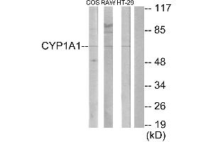 Image no. 1 for anti-Cytochrome P450, Family 1, Subfamily A, Polypeptide 1/2 (CYP1A1/2) antibody (ABIN1575998)