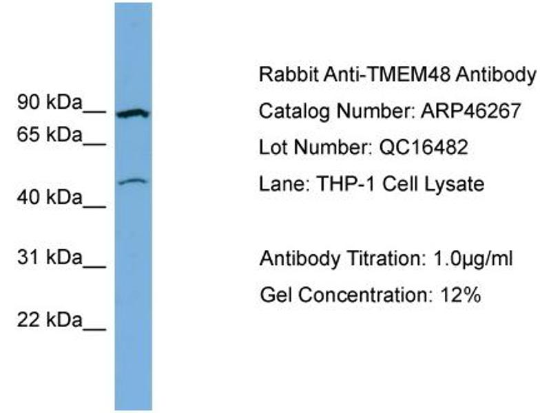 Western Blotting (WB) image for anti-Transmembrane Protein 48 (TMEM48) (Middle Region) antibody (ABIN2782564)