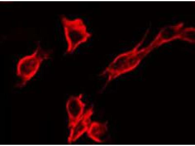 Immunofluorescence (fixed cells) (IF/ICC) image for anti-Insulin-Like Growth Factor 1 Receptor (IGF1R) (pTyr1346) antibody (ABIN6256637)