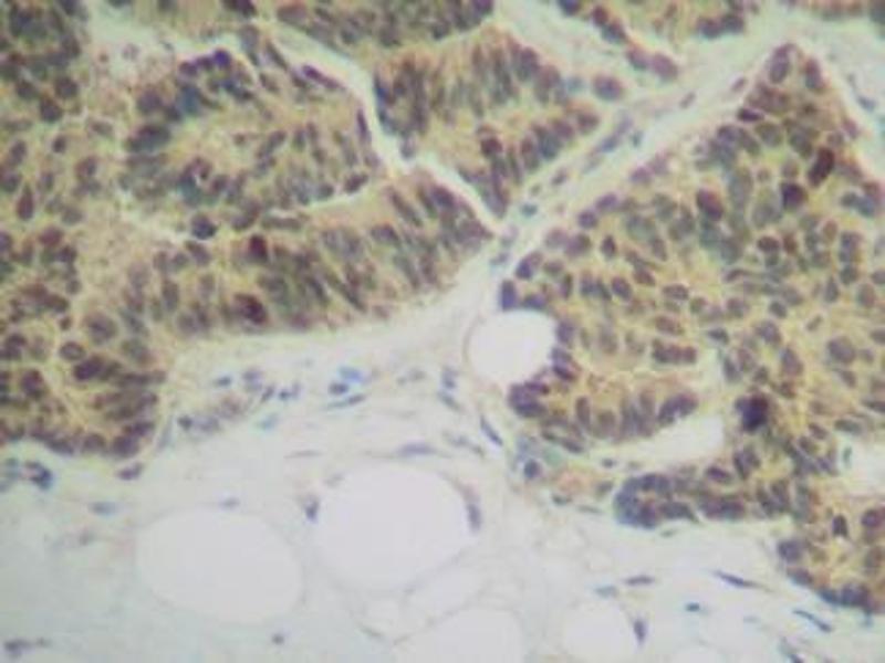image for anti-RANK (CD265) antibody (ABIN465070)
