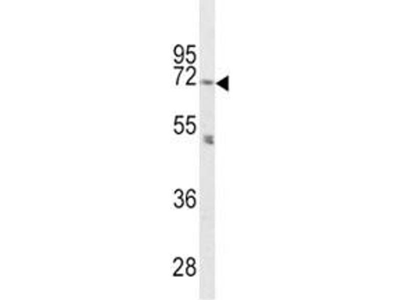 Western Blotting (WB) image for anti-Proprotein Convertase Subtilisin/kexin Type 2 (PCSK2) (AA 87-116) antibody (ABIN3032332)