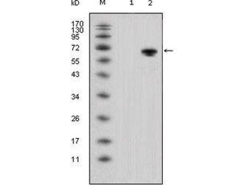 Western Blotting (WB) image for anti-Wingless-Type MMTV Integration Site Family, Member 5A (WNT5A) antibody (ABIN449945)