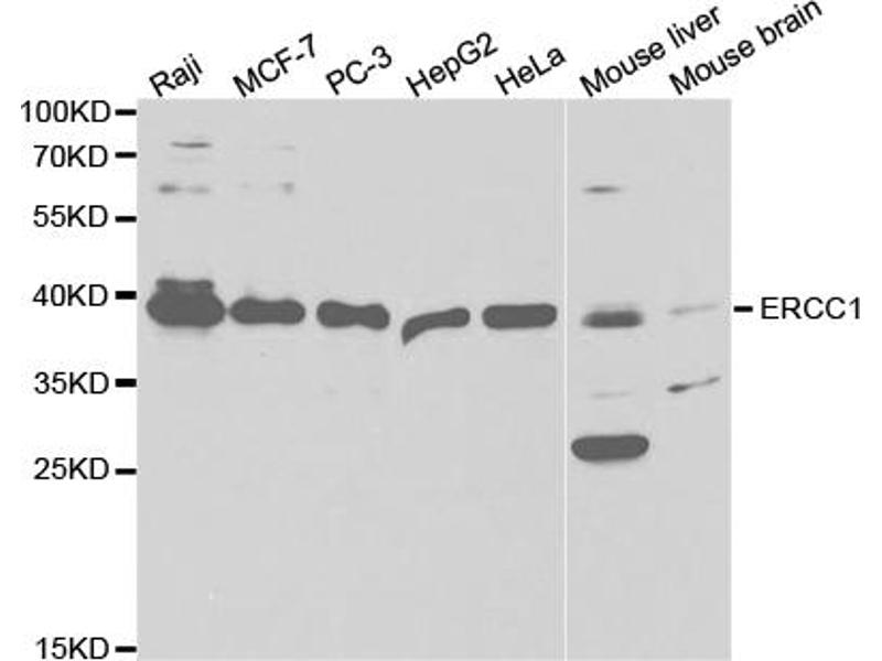 Western Blotting (WB) image for anti-Excision Repair Cross Complementing Polypeptide-1 (ERCC1) antibody (ABIN2975357)