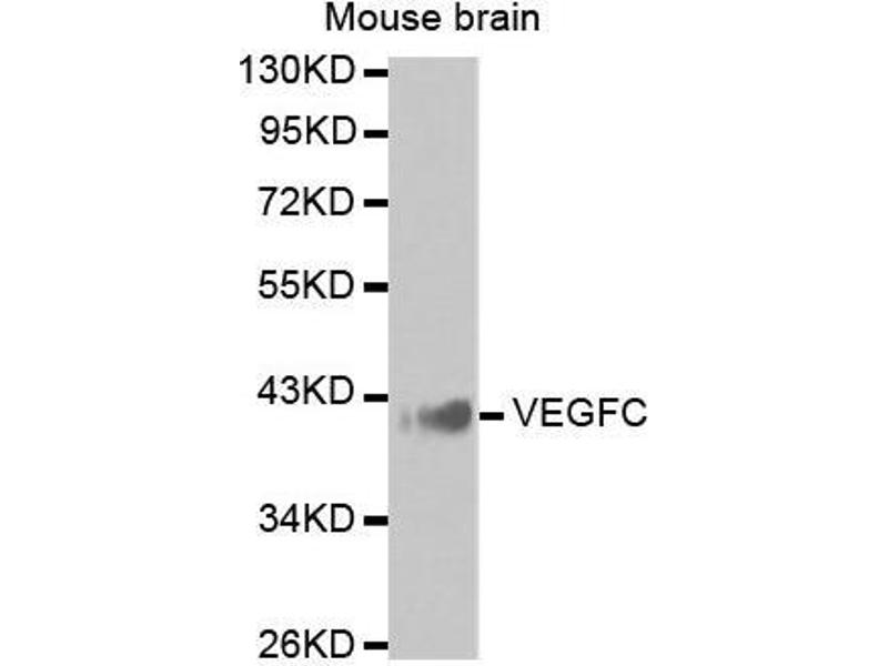Western Blotting (WB) image for anti-Vascular Endothelial Growth Factor C (VEGFC) antibody (ABIN3023364)
