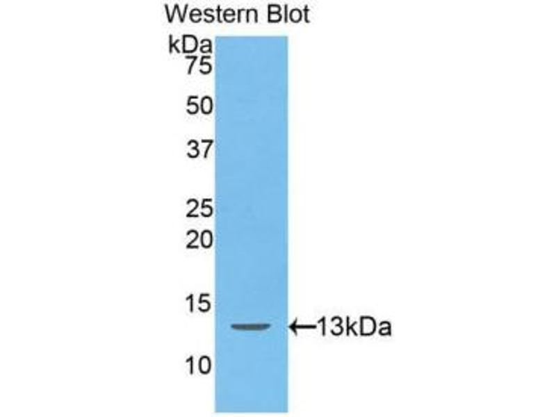 Western Blotting (WB) image for anti-Hepcidin Antimicrobial Peptide (HAMP) (AA 25-84) antibody (ABIN1175290)
