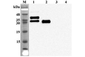 Western Blotting (WB) image for anti-Fibroblast Growth Factor 23 (FGF23) antibody (ABIN1169432)