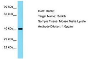 Image no. 1 for anti-Ribosomal Modification Protein RimK-Like Family Member B (RIMKLB) (AA 41-90) antibody (ABIN6750385)