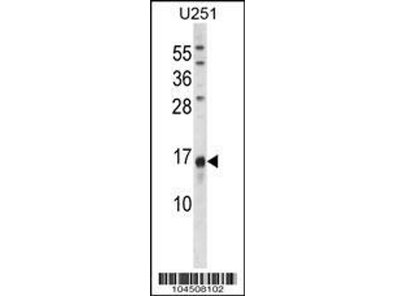Western Blotting (WB) image for anti-Osteocalcin antibody (Bone gamma-Carboxyglutamate (Gla) Protein) (AA 2-32) (ABIN388727)
