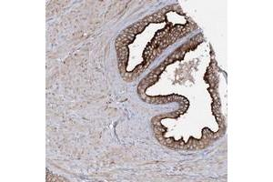 Image no. 1 for anti-Synaptotagmin Like Protein 1 (SYTL1) antibody (ABIN5589116)