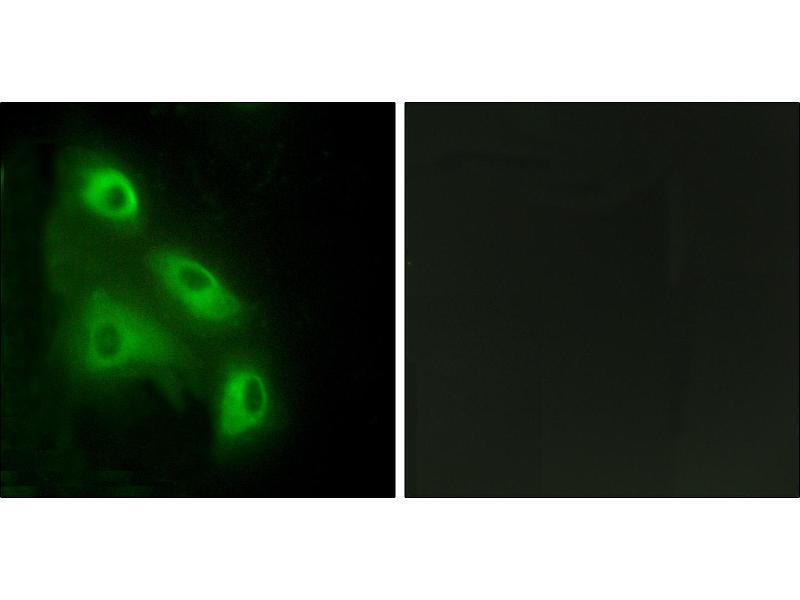 Image no. 2 for anti-EPS8-Like 3 (EPS8L3) antibody (ABIN1576334)